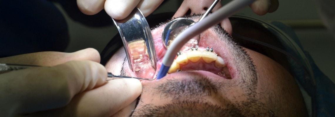 Tratamientos de cirugía estética mucogingival