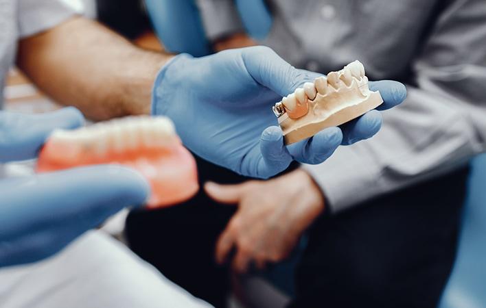 implantes dentales: estética y salud